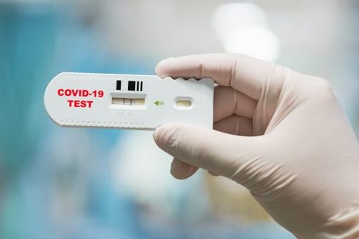RAPID TEST PER COVID 19 IN FARMACIA
